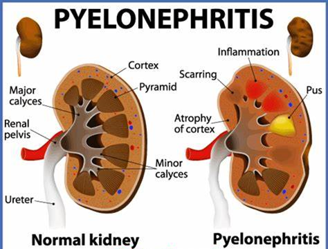 Pyelonephritis Note and Scarring Notes